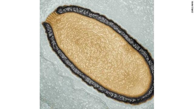http://www.cnn.com/2014/03/05/world/europe/siberia-giant-virus-discovered/index.html?hpt=hp_t2